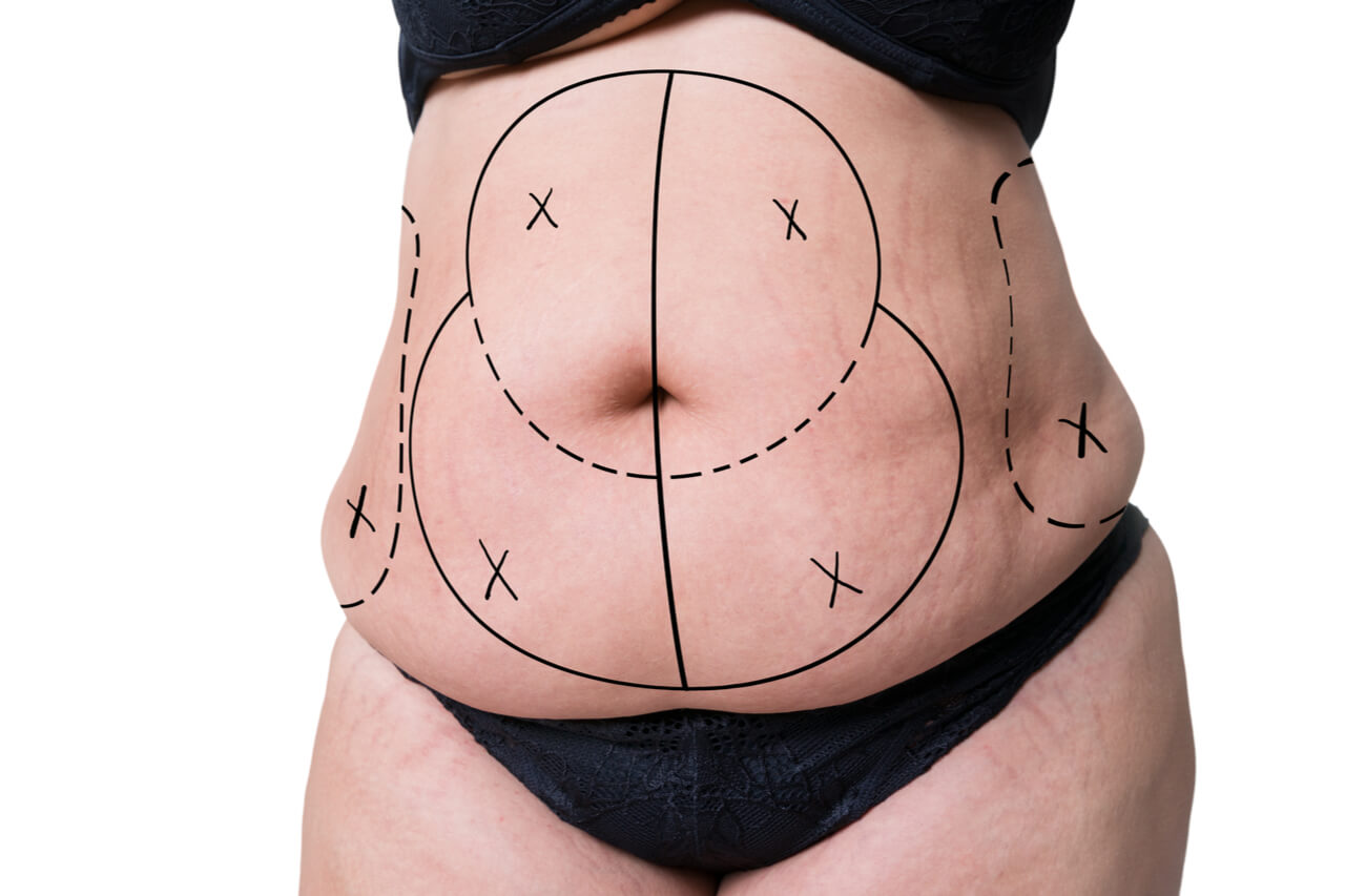 tummy tuck vs abdominoplasty