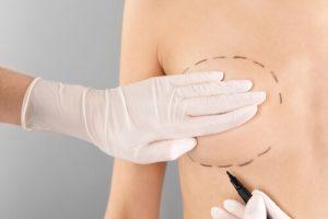 teardrop breast implants advantages and disadvantages