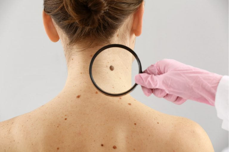 How to Tell if a Mole is Cancerous?