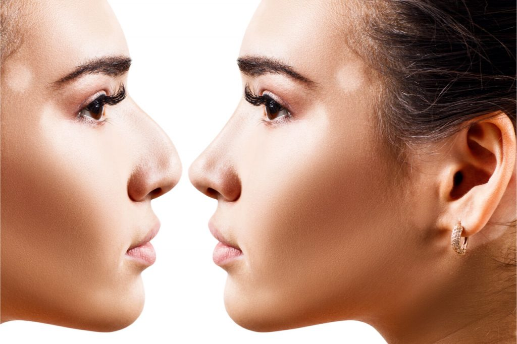 Rhinoplasty: Cost And What You Can Expect In The Surgery