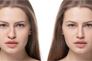 woman with deformed nose and after rhinoplasty