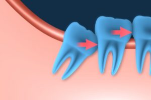 illustration of wisdom tooth